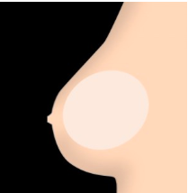 softer hollow breasts